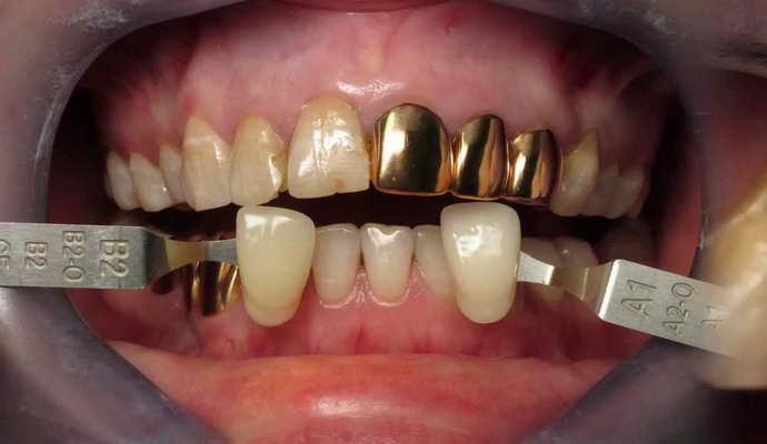 Протезирование зубов золотом