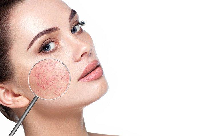 Мифы и правда о куперозе на лице и способы его лечения